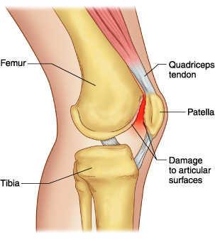 Manfaat dan Cara Melakukan Senam Lutut